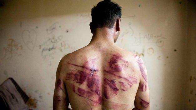El derecho a no sufrir tortura, tratos inhumanos o degradantes.